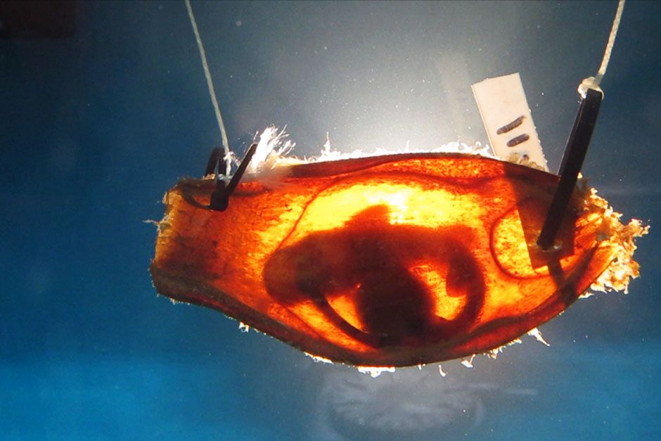 A shark embryo in Ryan Kempsters Lab. This image is from The Real Jaws. [Photo of the day - August 2014]