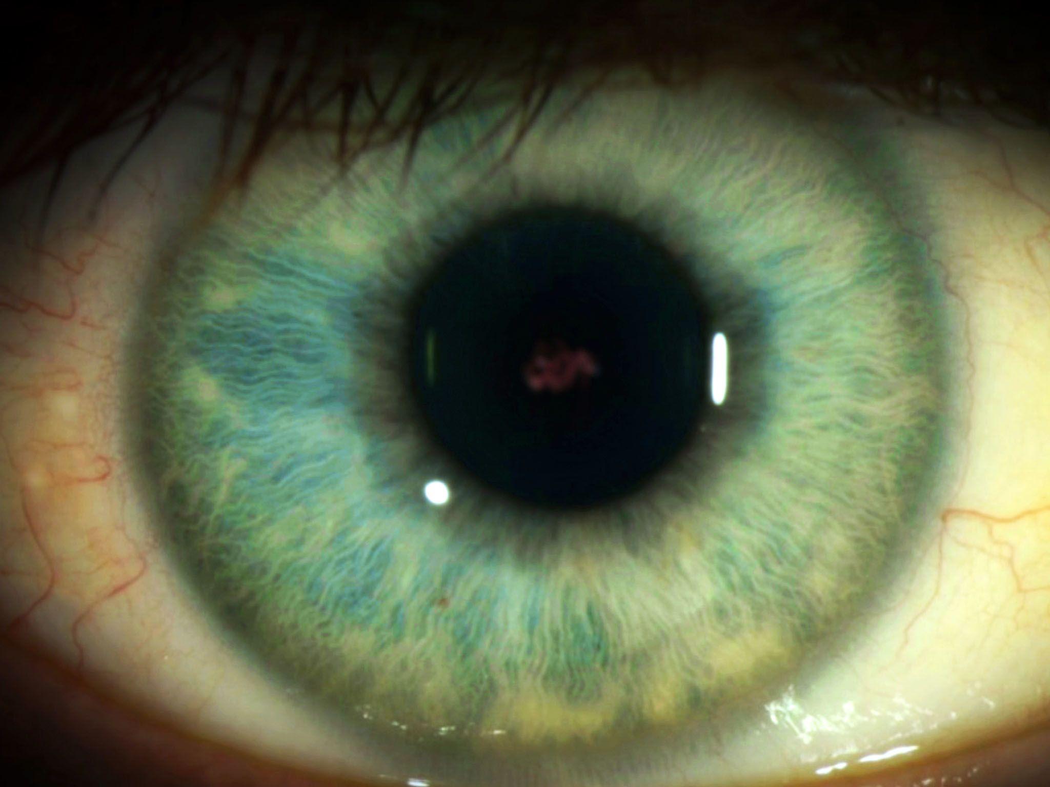 Il virus Ebola si nasconde davvero negli occhi? [Foto del giorno - gennaio 2017]