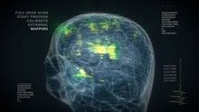My Brilliant Brain show