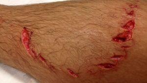 Shark Attack Victims photo