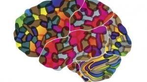 جراحة الدماغ صورة