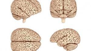 Brain Surgery photo
