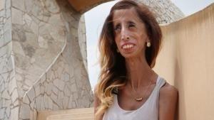 القلب الشجاع: قصة ليزي فيلاسكيز صورة