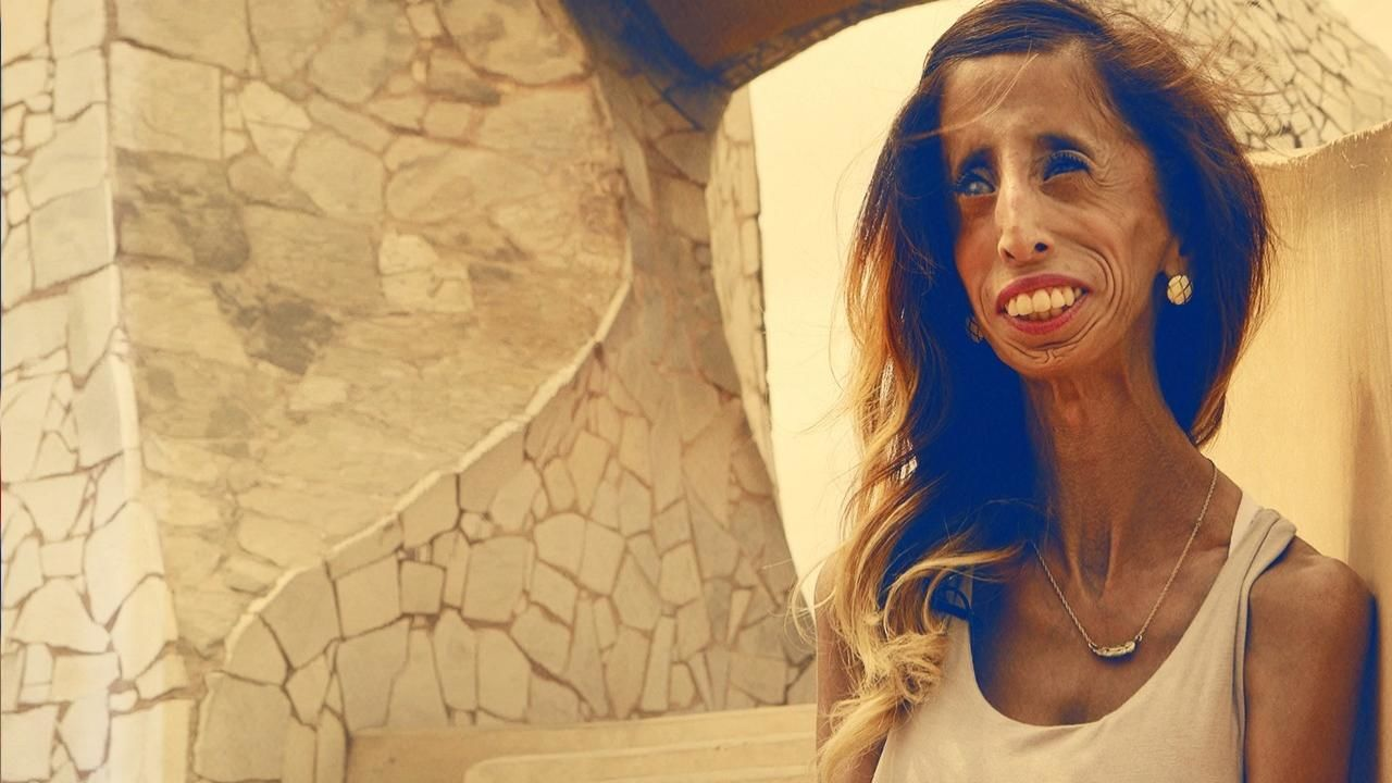 A Brave Heart: The Lizzie Velasquez Story - National Geographic