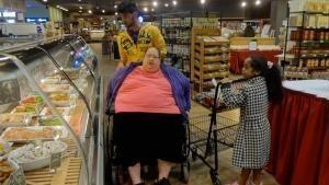 Obesità estrema foto